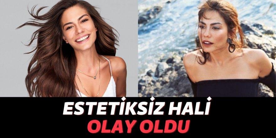 Demet Özdemir'in eski halini görenler şok oldu!