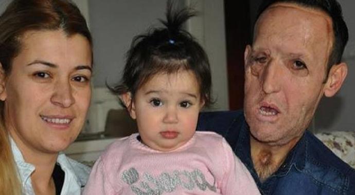 Yüz Nakli ile Tanınan Recep Sert'e Tutuklama Kararı