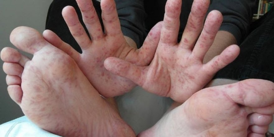 İşte el ayak ağız hastalığıbelirtileri!